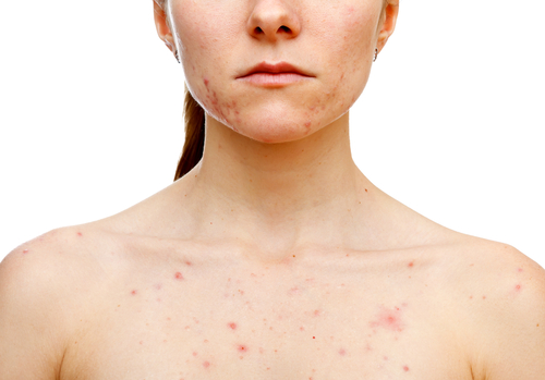 スピリチュアル 蕁麻疹 意味