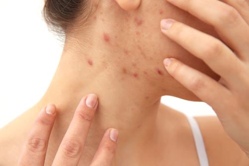 スピリチュアル 皮膚 湿疹